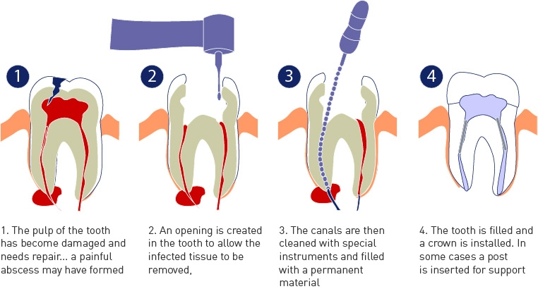 Root Canal Treatment – One Dental Specialties